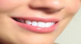 Вредно ли Отбеливание Зубов на Самом Деле