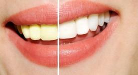 Какое Отбеливание Зубов Самое Лучшее