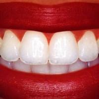 Отбеливание Зубов Активированным Углем – Как Правильно