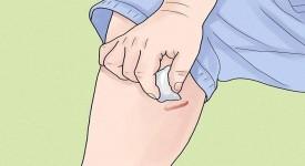 Как Убрать Шрамы на Ногах в Домашних Условиях