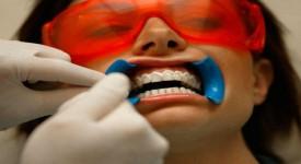Самое Безопасное Отбеливание Зубов - Сравниваем Методы