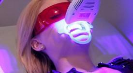 Лазерное Отбеливание Зубов - Плюсы и Минусы