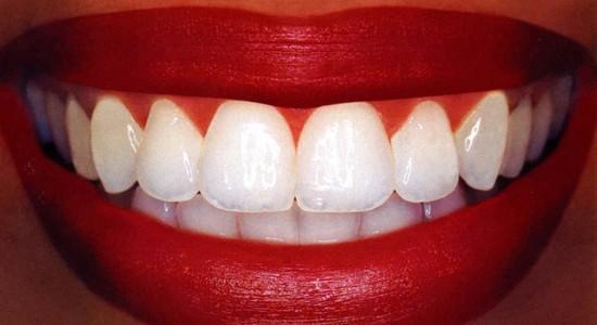 Отбеливание зубов активированным углем